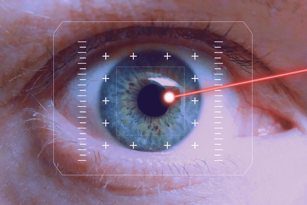 Augen lasern in Rostock SMILE-Methode